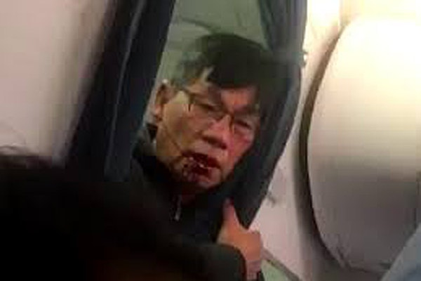 David Dao is shown during an incident on a United Airlines flight in a YouTube video.