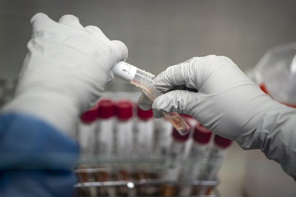 Jax Benjamin, a clinical quality assurance officer, completed the viral processing stage of testing, taking patient samples that have come in and tran