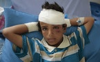 FILE - In this Aug. 12, 2018 file, photo, a child who was injured in a deadly Saudi-led coalition airstrike rests in a hospital in Saada, Yemen. The U